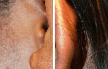 Removal of Keloids before and after photo