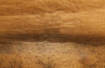 Removal of pubis - picture after