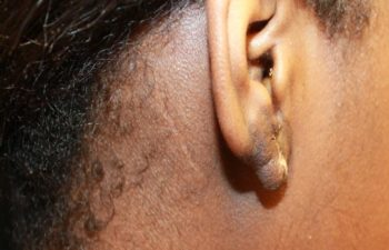 Removal of keloid - picture after