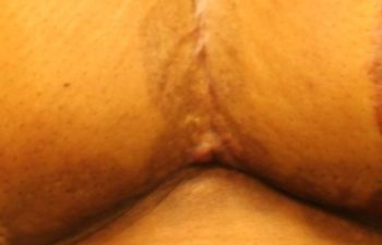 Removal of Keloids - picture after