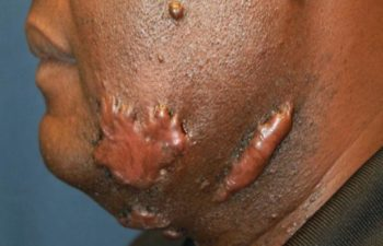 Removal of keloid - picture before